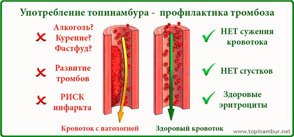 очищение организма при язве желудка от паразитов
